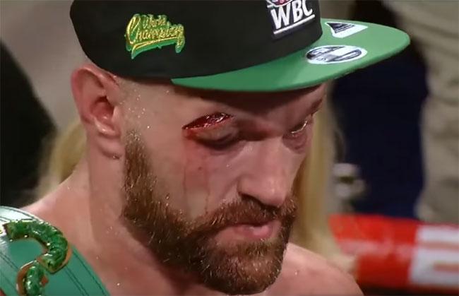 Фрэнк Уоррен: Фьюри два месяца не сможет тренироваться - «Бокс»